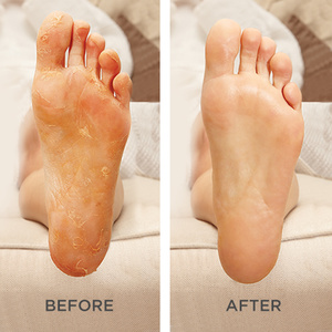 Silky Foot